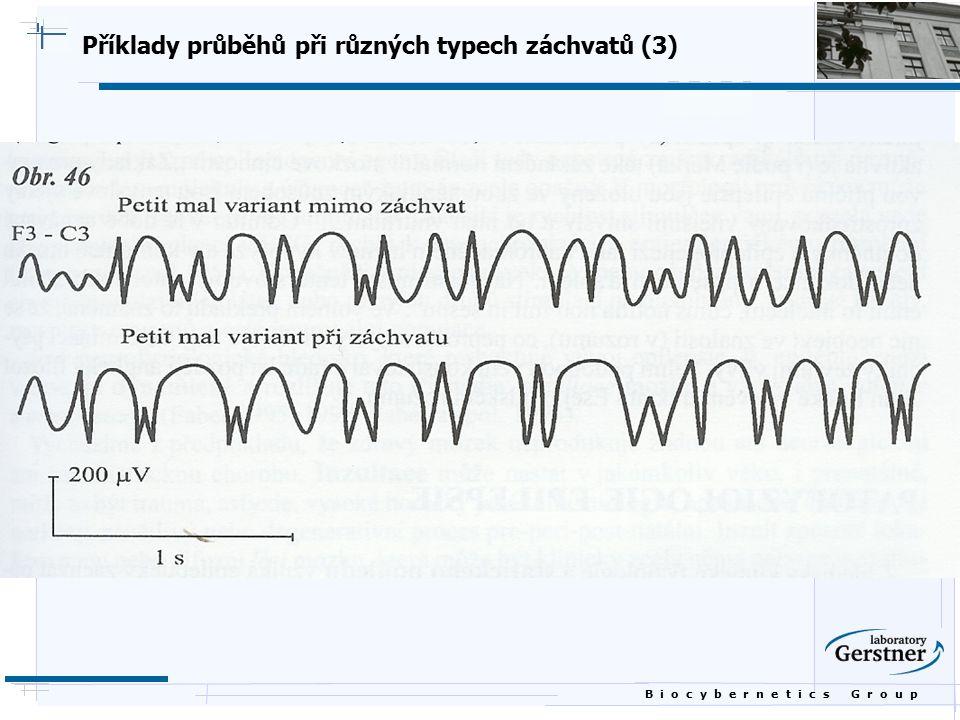B i o c y b e r n e t i c s G r o u p Příklady průběhů při různých typech záchvatů (3)