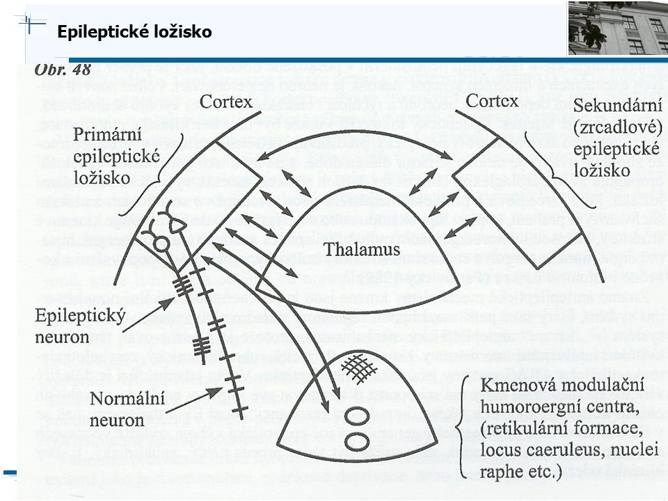 B i o c y b e r n e t i c s G r o u p Epileptické ložisko