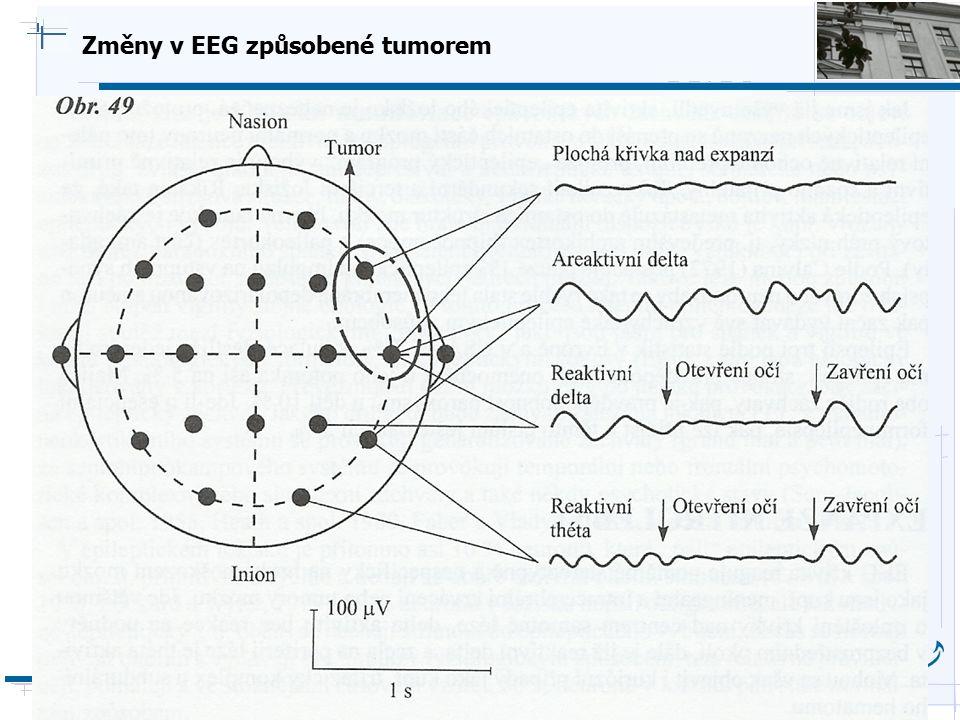 B i o c y b e r n e t i c s G r o u p Změny v EEG způsobené tumorem