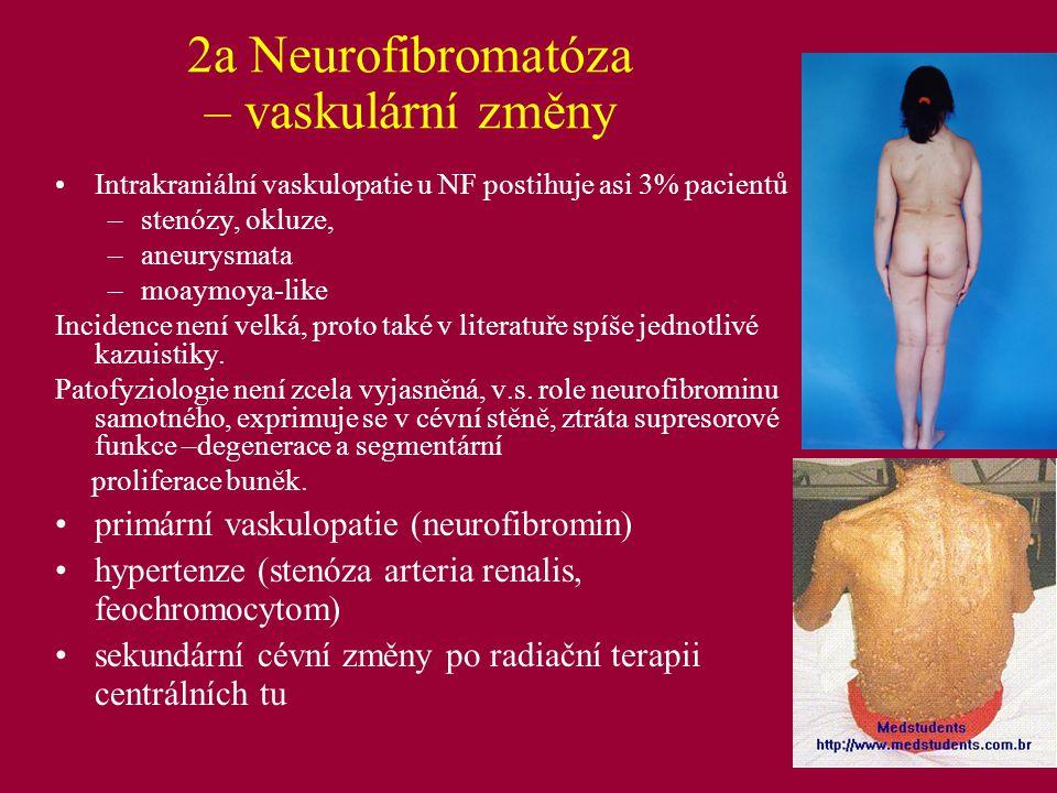 Ad 2a) Homocystinurie Metabolické onemocnění, AR dědičnost, nejčastější forma – defekt cystation-beta syntetázy (ÚDPM, Praha), dále těžká porucha syntézy vit.B12 a defektu MTHFR (ÚDPM, Praha), l:100 000 Elevace homocysteinu v séru, zvýšené vylučování močí, methionin podle typu Postižení CNS (mentální retardace), kostí (anomálie, osteoporóza), kůže, oka (ektopia lentis), cév (trombembolismus, předčasná AS); Klasifikace hyperhomocysteinémie: Těžká (více jak 100 umol/l) –monogenní formy Střední (více jak 30 umol/l) –deficit folátů a B12, renální insuficience, MTHFR Lehká od 12-15 do 30 umol/l – viz výše, lékové interakce (Metab.