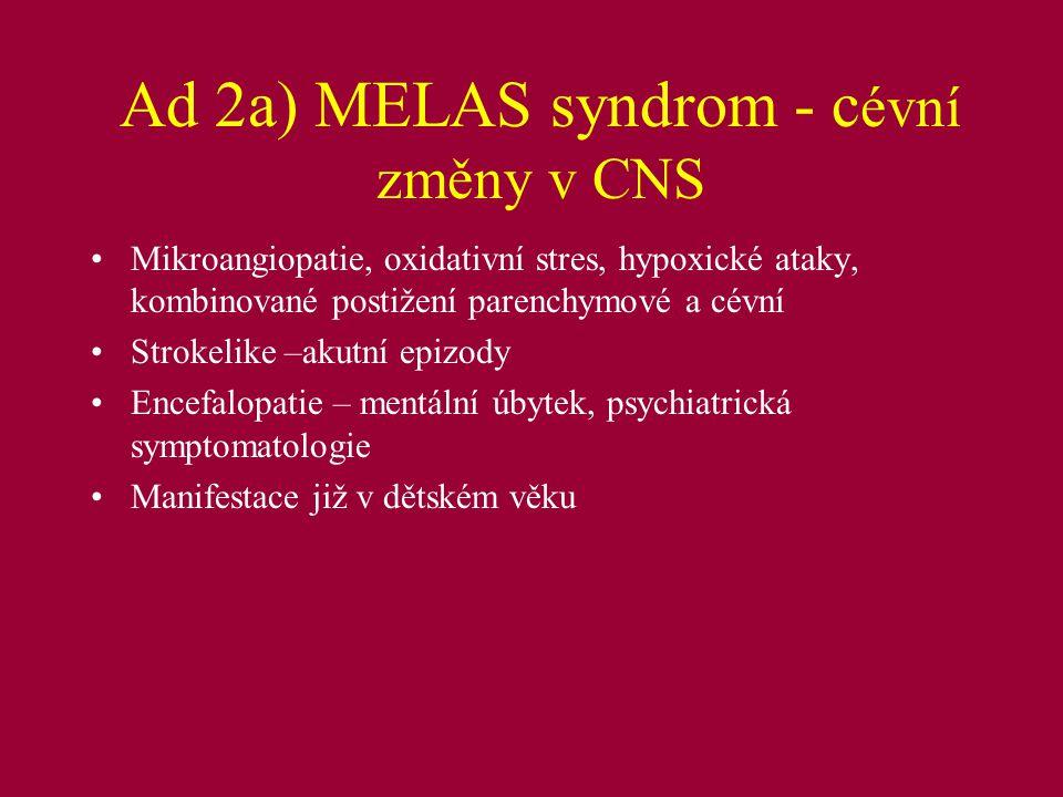 Ad 2a) CADASIL Cerebrální autosomálně dominantní arteriopatie se subkotikálními infarkty a leukoencefalopatií, dříve hereditární multiinfarktová demence Gen NOTCH 3, jaderný genom, ale mitochondriální funkce AD klinika: CMP, demence, psychiatrické dg., migrény, 80% pacienta s demencí má také poruchy chůze a/nebo inkontinenci moče MRI změny v bílé hmotě mozkové dlouho předcházejí ischemické atace diagnózu lze z kožní biopsie (akumulace specif.