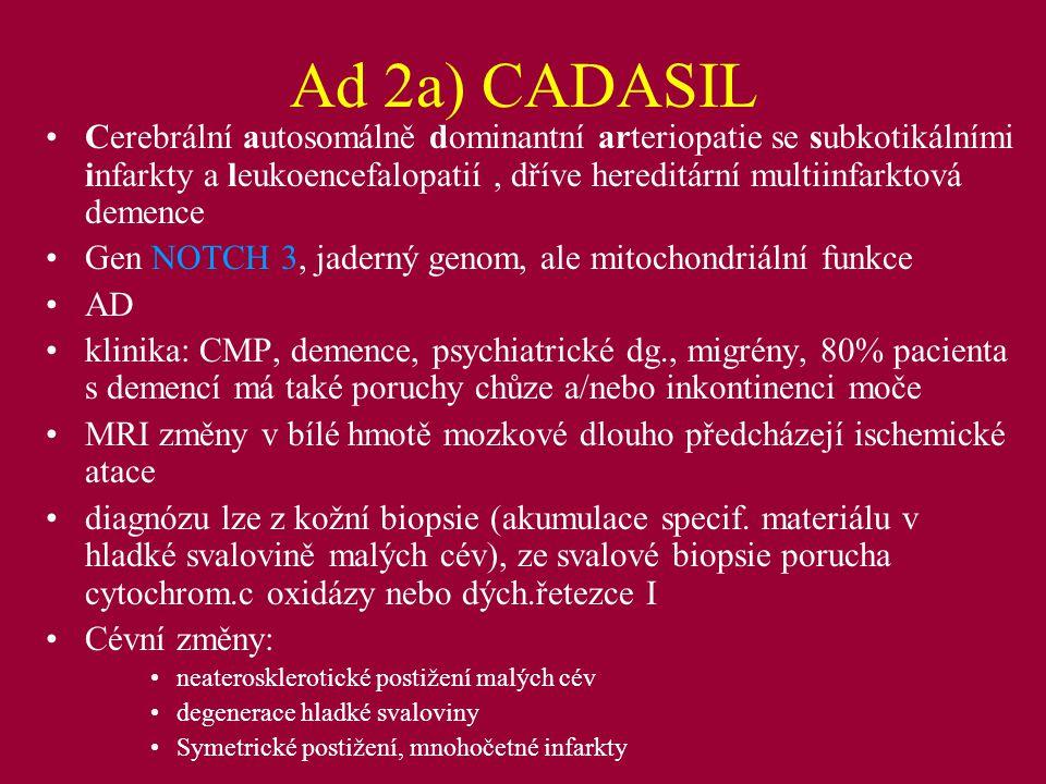 2) Monogenně dědičná systémová onemocnění s častým výskytem ischemických nebo hemoragických změn v CNS Dědičné cerebrální amyloidní angiopathie : Hereditární cerebrální hemoragie s amyloidózou Holadského typu (HCHWA-D), AD, gen APP (FN Ostrava) - Glu22Gln; 1/3 patientů - fatální hemorhagie, 2/3 demence Hereditární cerebrální hemoragie s amyloidózou Islandského typu (HCHWA-I)- gen pro cystatin C, Glu68Leu, AD, CMP většinou pod 35 let Familiární amyloidová polyneuropathie - gen pro transthyretin, riziko fatálního intracerebrálního krvácení