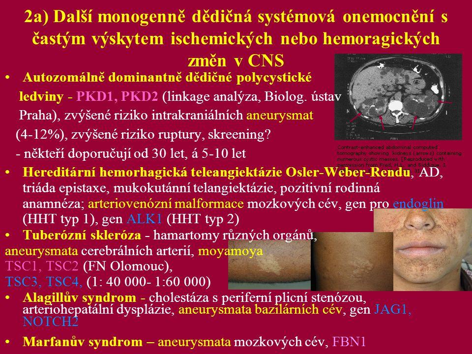 2a) Další monogenně dědičná systémová onemocnění s častým výskytem ischemických nebo hemoragických změn v CNS Mb.Fabry (1: 40 000) X vazba, lyzozomální střádavé onemocnění, gen pro alfa-galactosidázu A, CMP obvykle ve 3.-4.