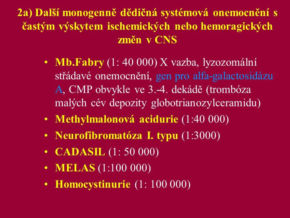 """Ad 2a) Neurofibromatóza NF I (l7q11.2), NF II (22q11), AD dědičnost, nové mutace, l:3000 neurofibromin i produkt NF II jsou tumor supresory tkáňové postižení, deriváty ektoderm, mezoderm -kosti, kůže, nervový systém, cévy, Klinická kriteria NF I (splnění alespoň dvou níže uvedených): –6 a více skvrn cafe au lait větších jak 0,5cm prepubertálně a 1,5cm postpubertálně –2 a více neurofibromů nebo jeden plexiformní neurinom –axilární nebo inguinální """"pihování –2 a více Lischovy noduly –kostní léze –postižení u I.stupňového příbuzného U NF II postižení VIII."""