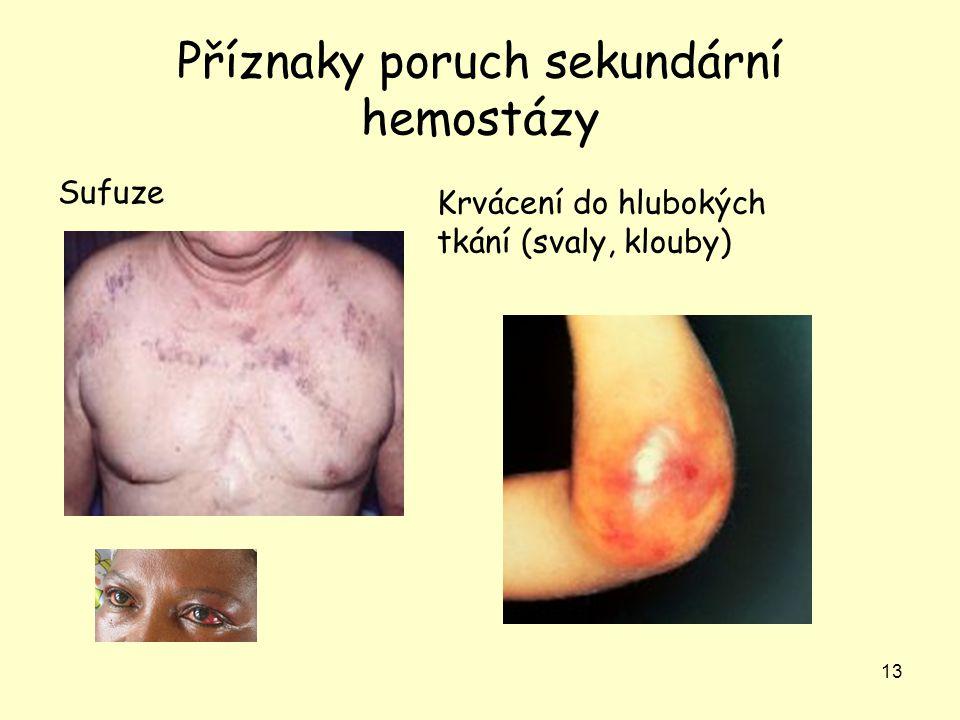 13 Příznaky poruch sekundární hemostázy Sufuze Krvácení do hlubokých tkání (svaly, klouby)