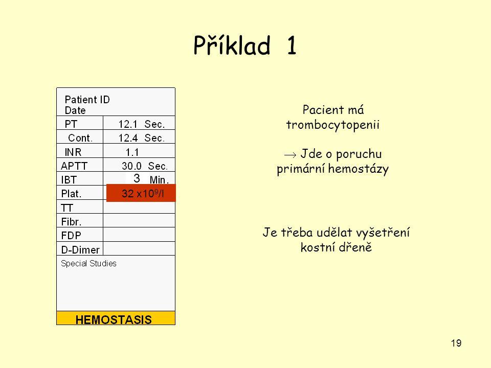 19 Příklad 1 Pacient má trombocytopenii  Jde o poruchu primární hemostázy Je třeba udělat vyšetření kostní dřeně 32 x10 9 /l 3
