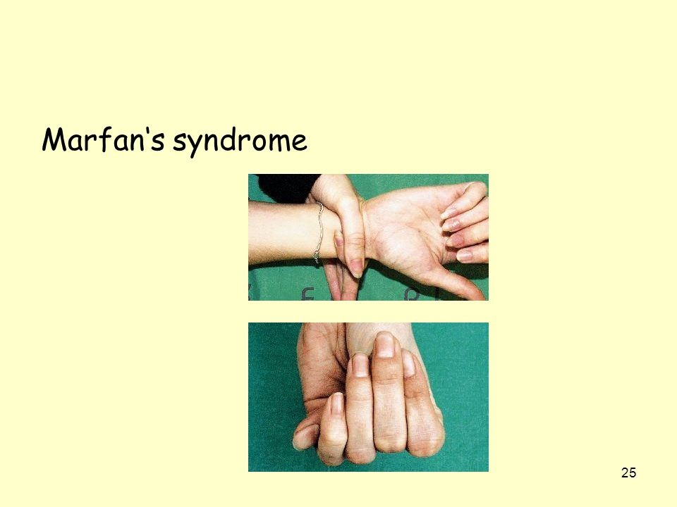 25 Marfan's syndrome