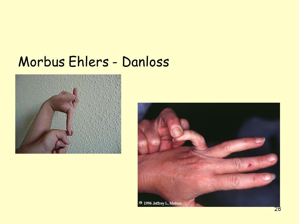 26 Morbus Ehlers - Danloss