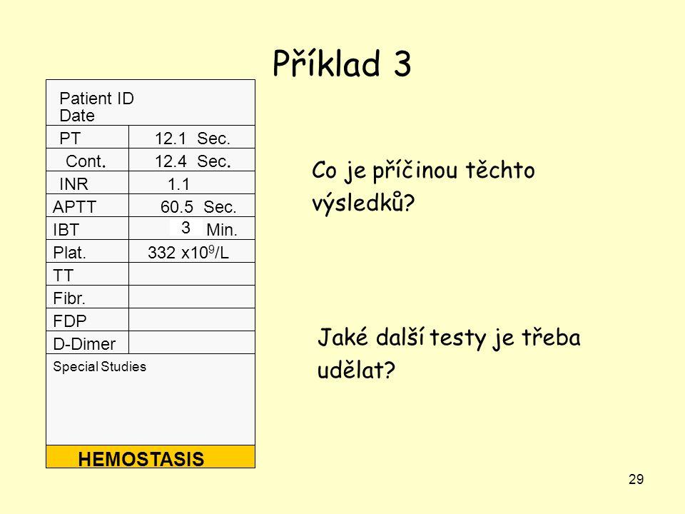 29 Příklad 3 Patient ID Date Special Studies PT Cont. INR APTT IBT Plat. TT Fibr. FDP D-Dimer HEMOSTASIS 12.1 Sec. 12.4 Sec. 1.1 60.5 Sec. 7.0 Min. 33