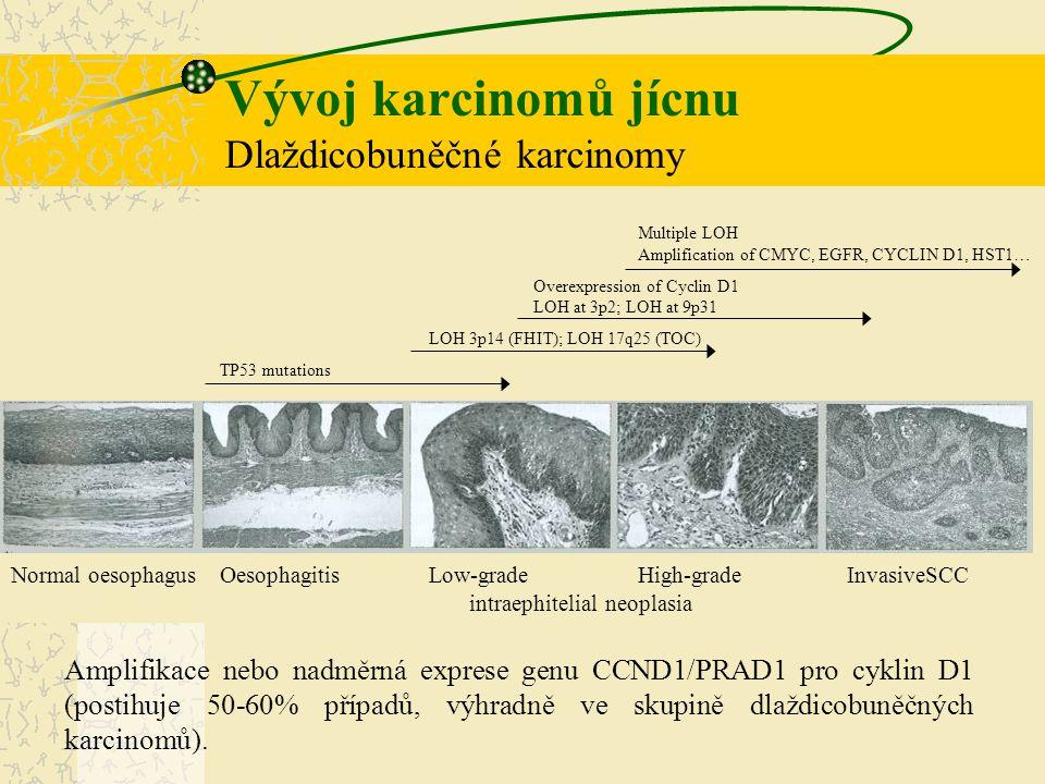Vývoj karcinomů jícnu Dlaždicobuněčné karcinomy Multiple LOH Amplification of CMYC, EGFR, CYCLIN D1, HST1… Overexpression of Cyclin D1 LOH at 3p2; LOH