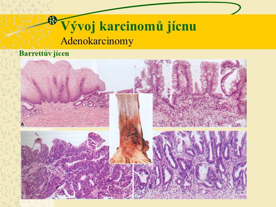 Barrettův jícen Vývoj karcinomů jícnu Adenokarcinomy