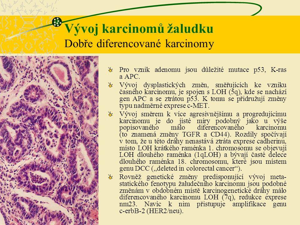 Vývoj karcinomů žaludku Dobře diferencované karcinomy Pro vznik adenomu jsou důležité mutace p53, K-ras a APC. Vývoj dysplastických změn, směřujících