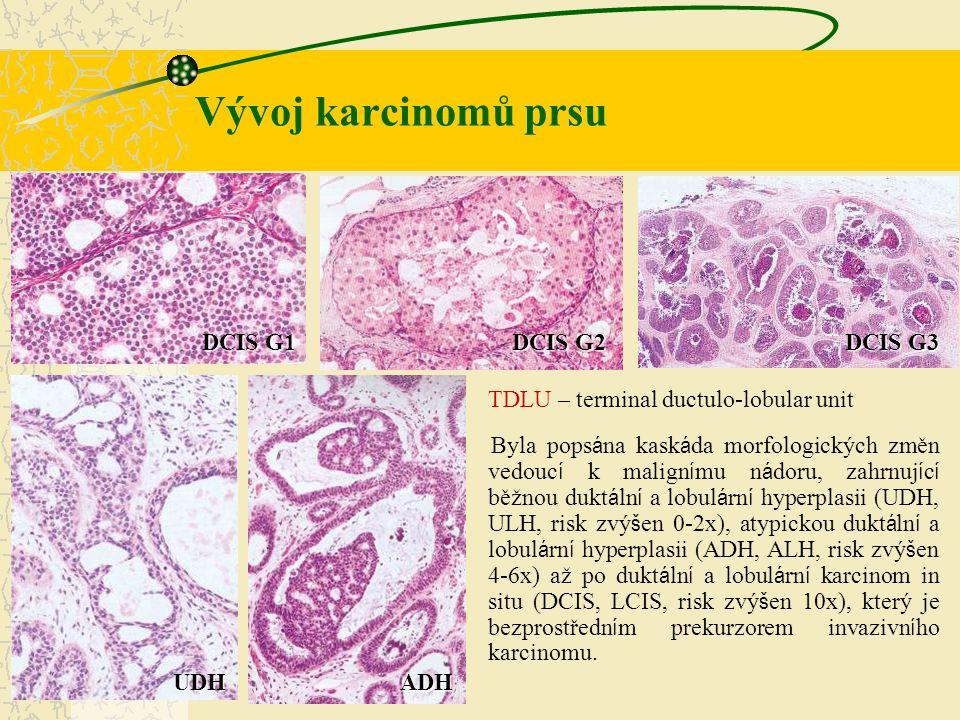 Vývoj karcinomů prsu TDLU – terminal ductulo-lobular unit Byla pops á na kask á da morfologických změn vedouc í k malign í mu n á doru, zahrnuj í c í