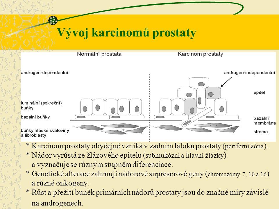 * Karcinom prostaty obyčejně vzniká v zadním laloku prostaty (periferní zóna ). * Nádor vyrůstá ze žlázového epitelu ( submukózní a hlavní žlázky ) a