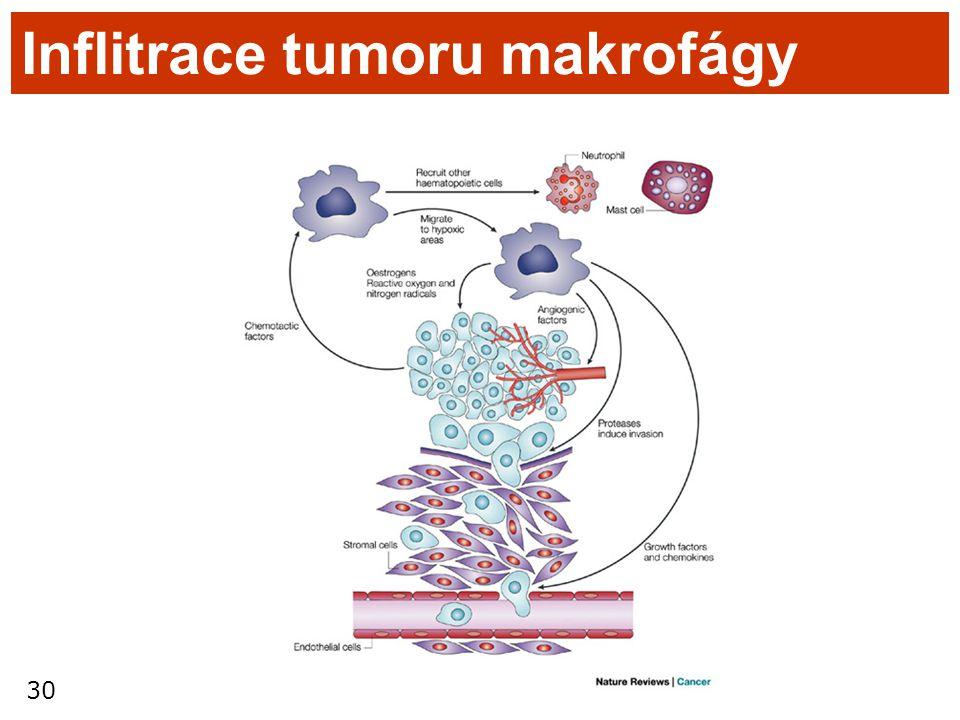 30 Inflitrace tumoru makrofágy