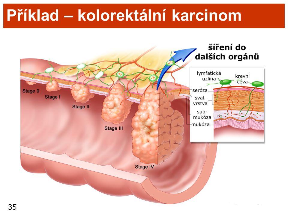 35 Příklad – kolorektální karcinom