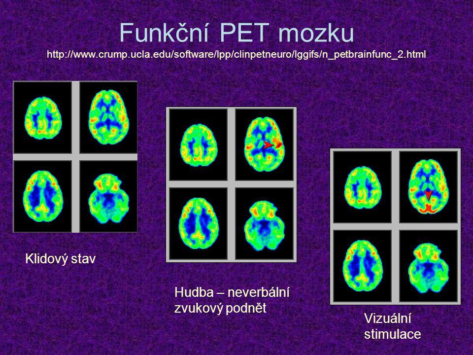 Funkční PET mozku http://www.crump.ucla.edu/software/lpp/clinpetneuro/lggifs/n_petbrainfunc_2.html Klidový stav Hudba – neverbální zvukový podnět Vizu