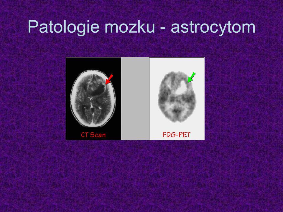 Patologie mozku - astrocytom