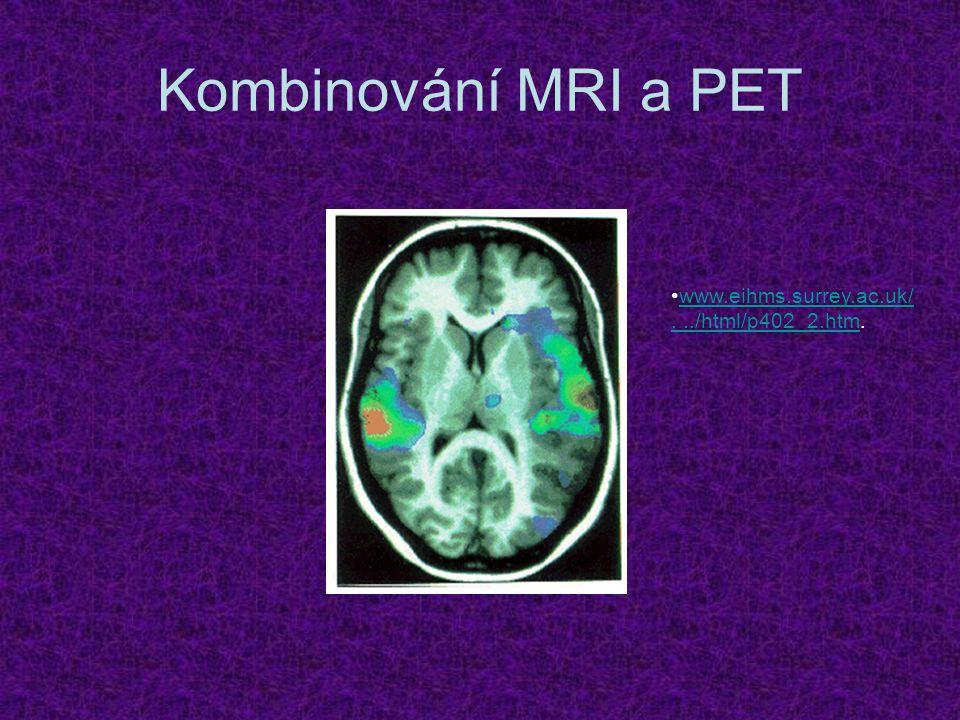 Kombinování MRI a PET www.eihms.surrey.ac.uk/.../html/p402_2.htm.www.eihms.surrey.ac.uk/.../html/p402_2.htm