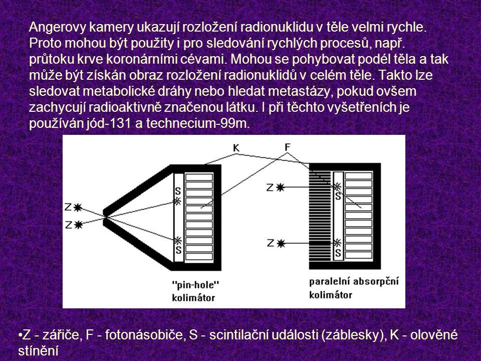 Angerovy kamery ukazují rozložení radionuklidu v těle velmi rychle. Proto mohou být použity i pro sledování rychlých procesů, např. průtoku krve koron