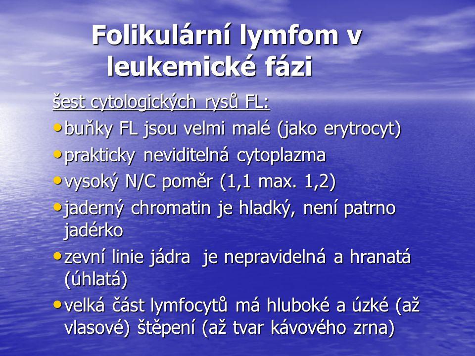 Folikulární lymfom v leukemické fázi Folikulární lymfom v leukemické fázi šest cytologických rysů FL: buňky FL jsou velmi malé (jako erytrocyt) buňky