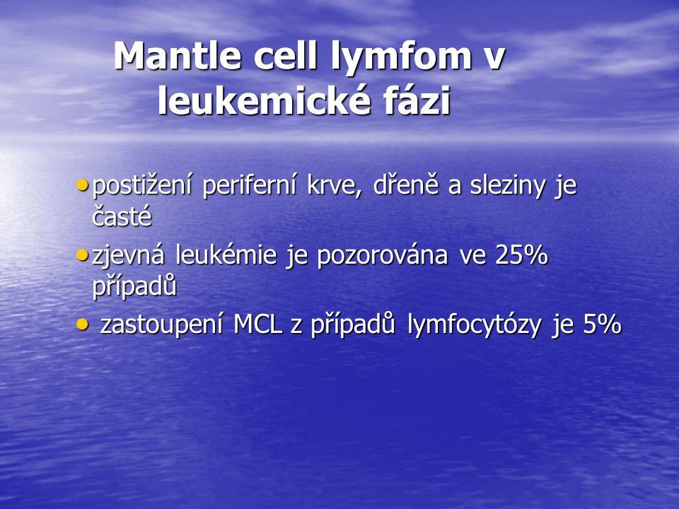 Mantle cell lymfom v leukemické fázi Mantle cell lymfom v leukemické fázi  postižení periferní krve, dřeně a sleziny je časté  zjevná leukémie je po