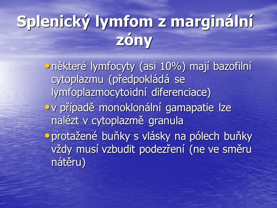 Splenický lymfom z marginální zóny některé lymfocyty (asi 10%) mají bazofilní cytoplazmu (předpokládá se lymfoplazmocytoidní diferenciace) některé lym