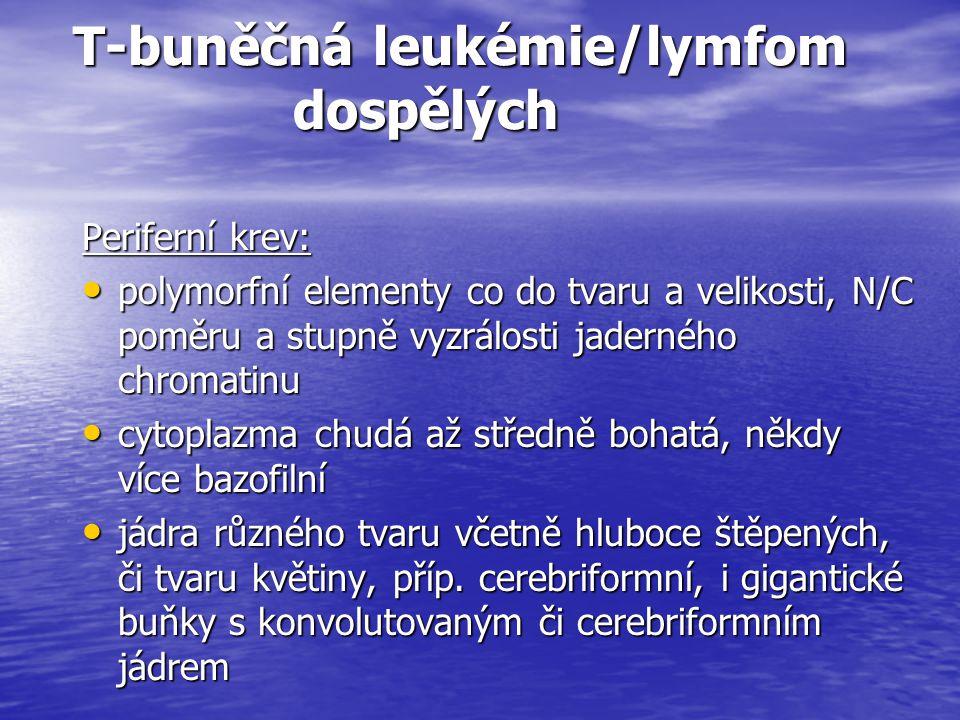 T-buněčná leukémie/lymfom dospělých T-buněčná leukémie/lymfom dospělých Periferní krev: polymorfní elementy co do tvaru a velikosti, N/C poměru a stup