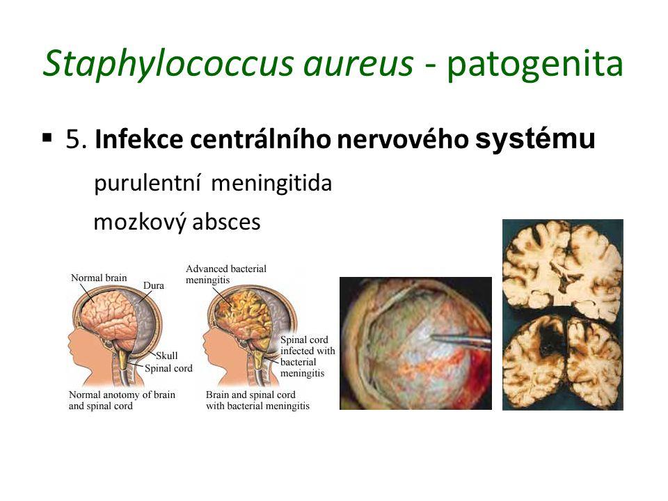 Staphylococcus aureus - patogenita  5. Infekce centrálního nervového systému purulentní meningitida mozkový absces