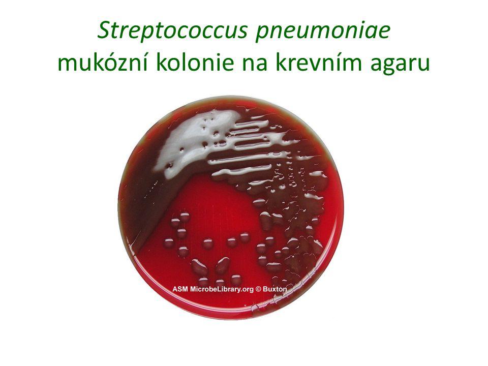 Streptococcus pneumoniae mukózní kolonie na krevním agaru