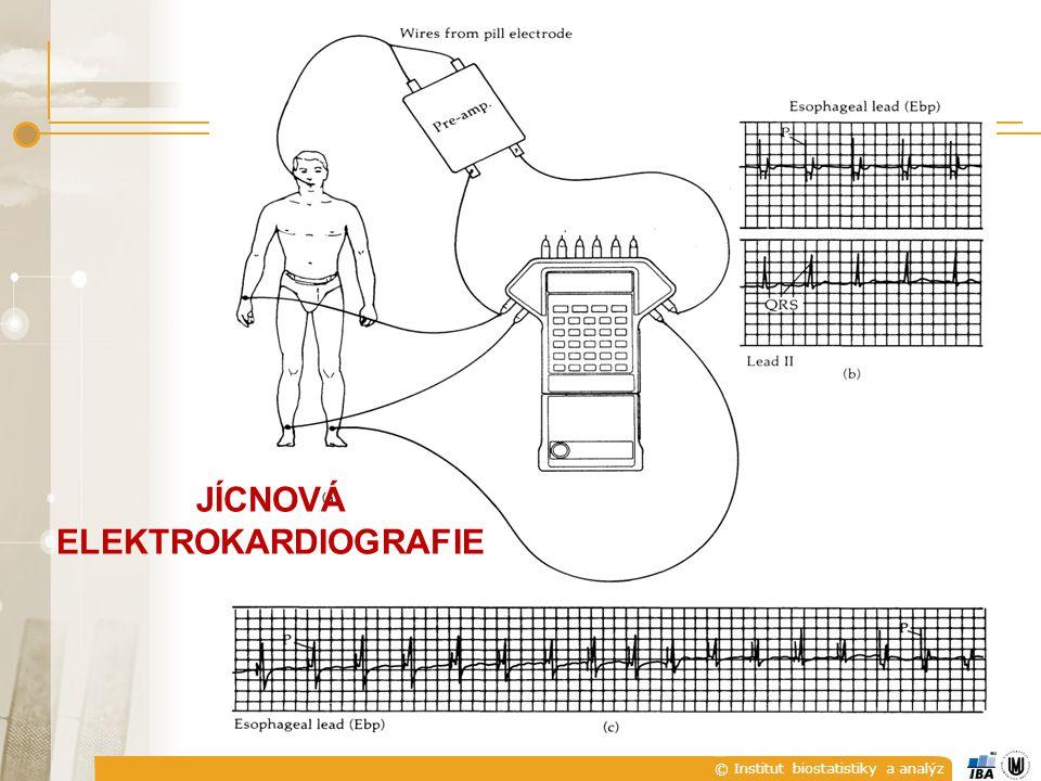 © Institut biostatistiky a analýz EKG SVODOVÉ SYSTÉMY JÍCNOVÁ ELEKTROKARDIOGRAFIE