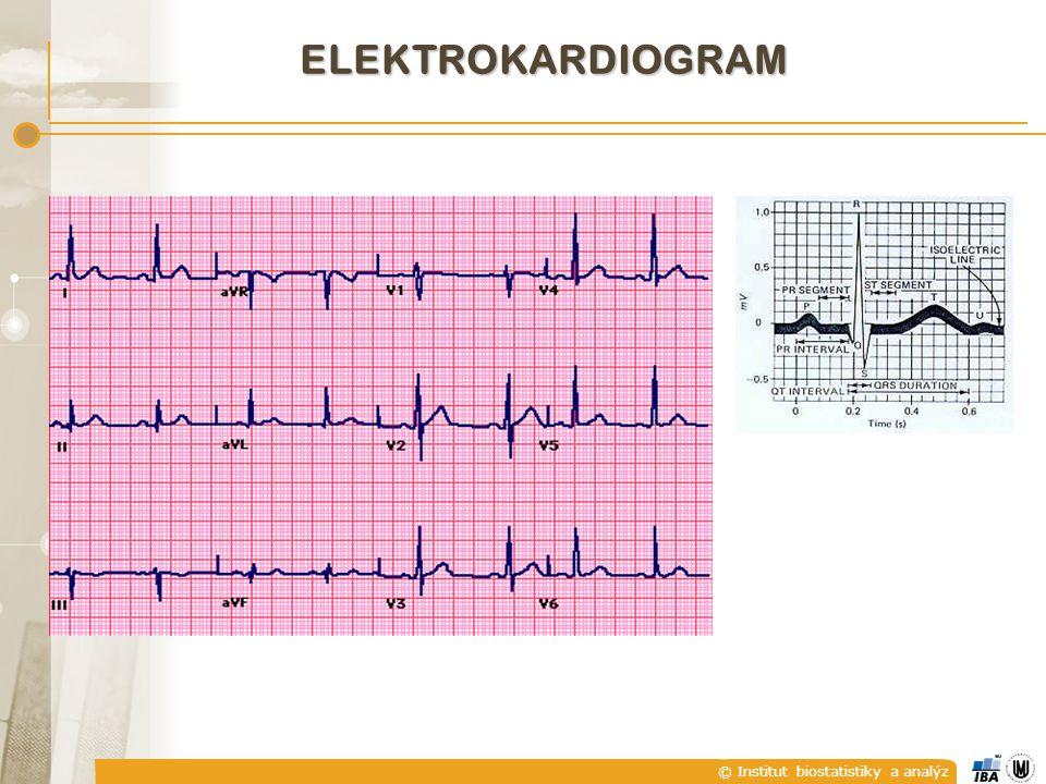 © Institut biostatistiky a analýz ELEKTROKARDIOGRAM