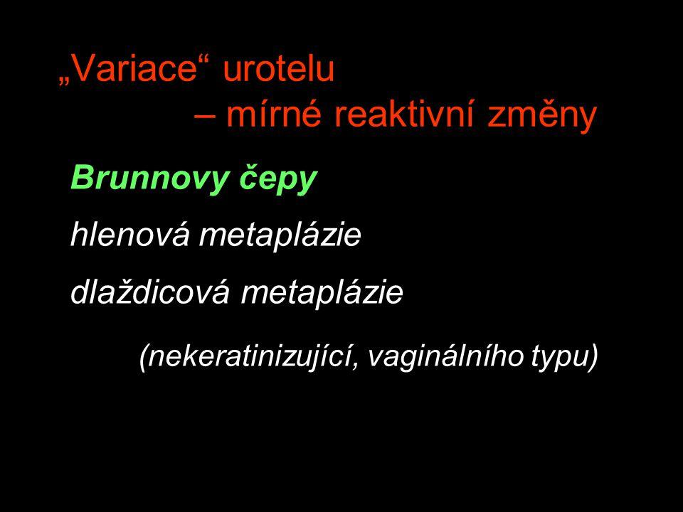 """""""Variace"""" urotelu – mírné reaktivní změny Brunnovy čepy hlenová metaplázie dlaždicová metaplázie (nekeratinizující, vaginálního typu)"""