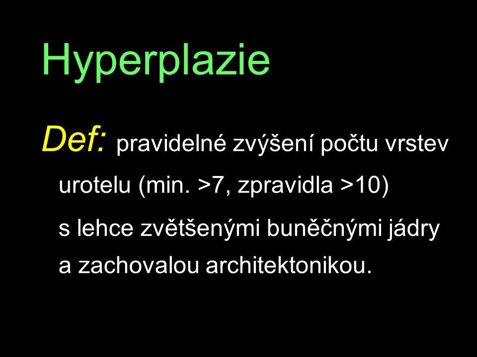 Hyperplazie Def: pravidelné zvýšení počtu vrstev urotelu (min. >7, zpravidla >10) s lehce zvětšenými buněčnými jádry a zachovalou architektonikou.