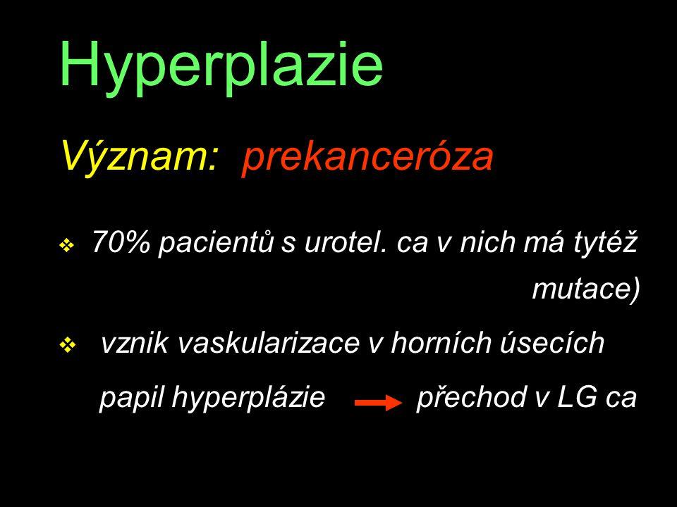 Hyperplazie Význam: prekanceróza v 70% pacientů s urotel. ca v nich má tytéž mutace) v vznik vaskularizace v horních úsecích papil hyperplázie přechod