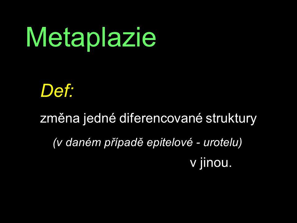 Metaplazie Def: změna jedné diferencované struktury (v daném případě epitelové - urotelu) v jinou.
