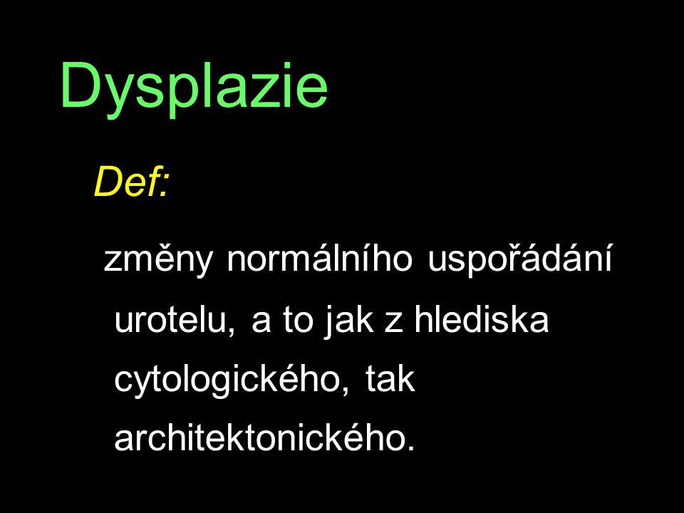 Dysplazie Def: změny normálního uspořádání urotelu, a to jak z hlediska cytologického, tak architektonického.