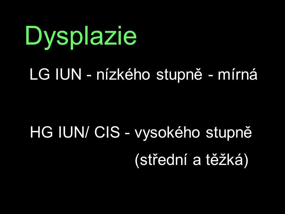 Dysplazie LG IUN - nízkého stupně - mírná HG IUN/ CIS - vysokého stupně (střední a těžká)