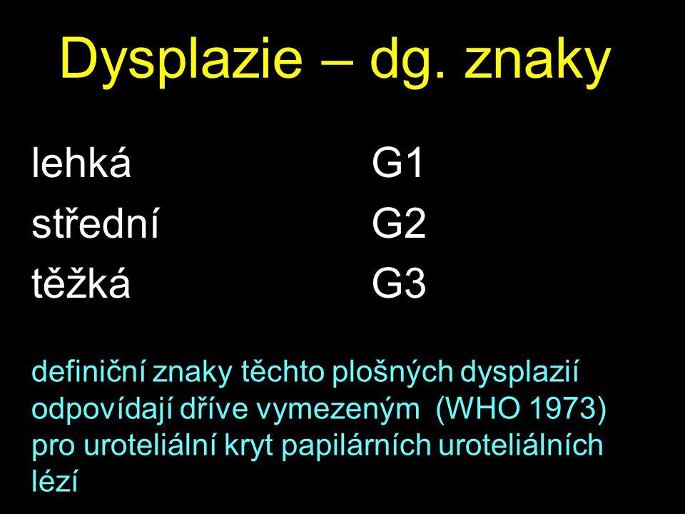 Dysplazie – dg. znaky lehká střední těžká G1 G2 G3 definiční znaky těchto plošných dysplazií odpovídají dříve vymezeným (WHO 1973) pro uroteliální kry