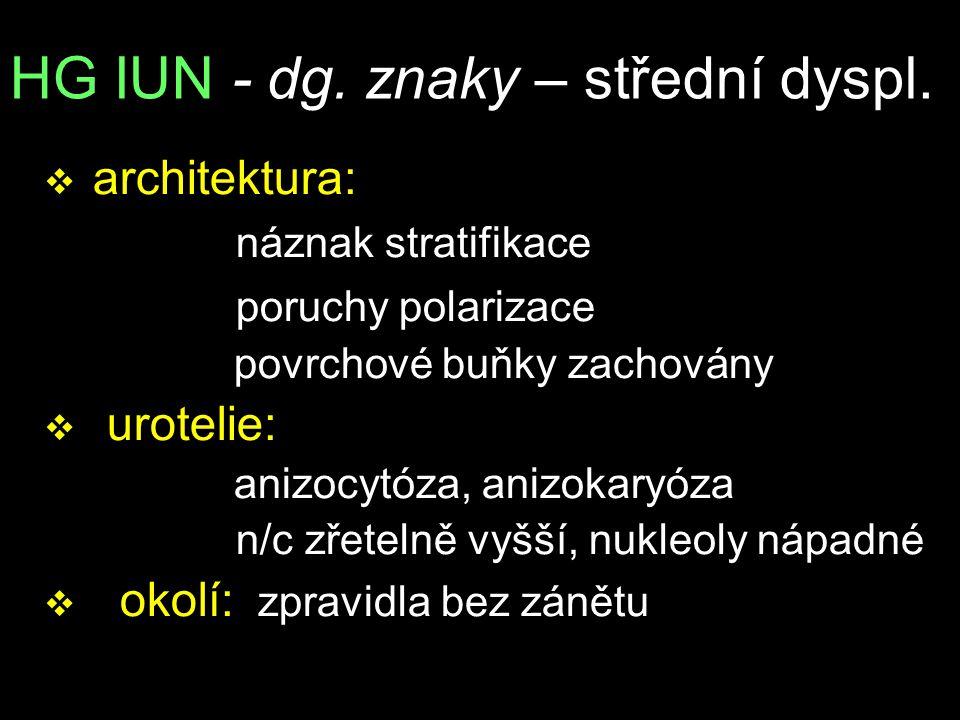 HG IUN - dg. znaky – střední dyspl. v architektura: náznak stratifikace poruchy polarizace povrchové buňky zachovány v urotelie: anizocytóza, anizokar
