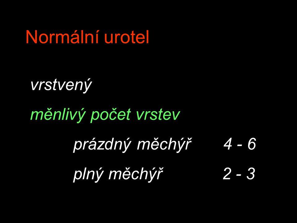 Normální urotel vrstvený měnlivý počet vrstev prázdný měchýř 4 - 6 plný měchýř 2 - 3