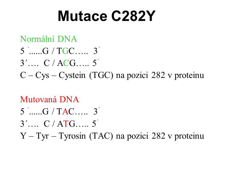 """PCR reakce probíhá ve dvou zkumavkách: PCR Mix 0 obsahuje primer obecný a """"normální (N) PCR Mix 1 obsahuje primer obecný a """"mutovaný (M) O/N O/M 121212 Homozygo t bez mutace Heterozygo t přenašeč Homozygo t s mutací"""