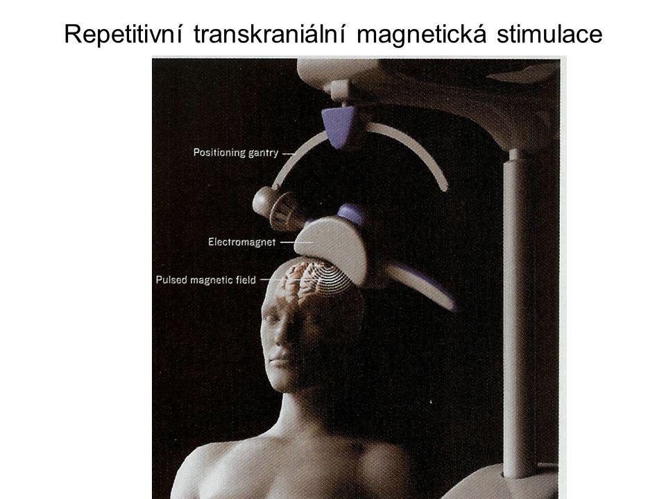 Repetitivní transkraniální magnetická stimulace