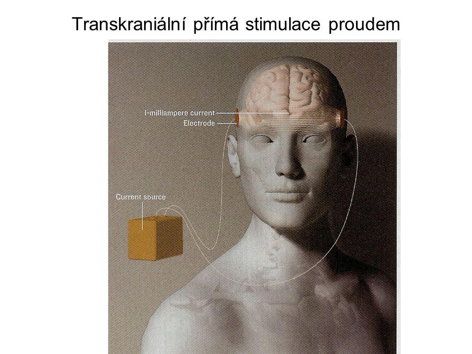 Transkraniální přímá stimulace proudem