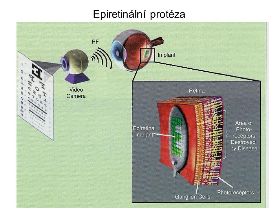 Epiretinální protéza