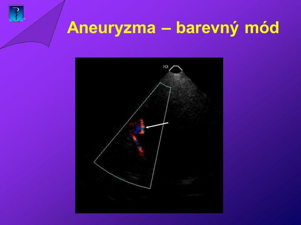 Aneuryzma – barevný mód