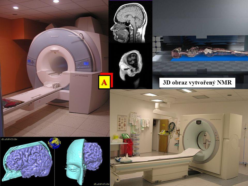 3D obraz vytvořený NMR AA