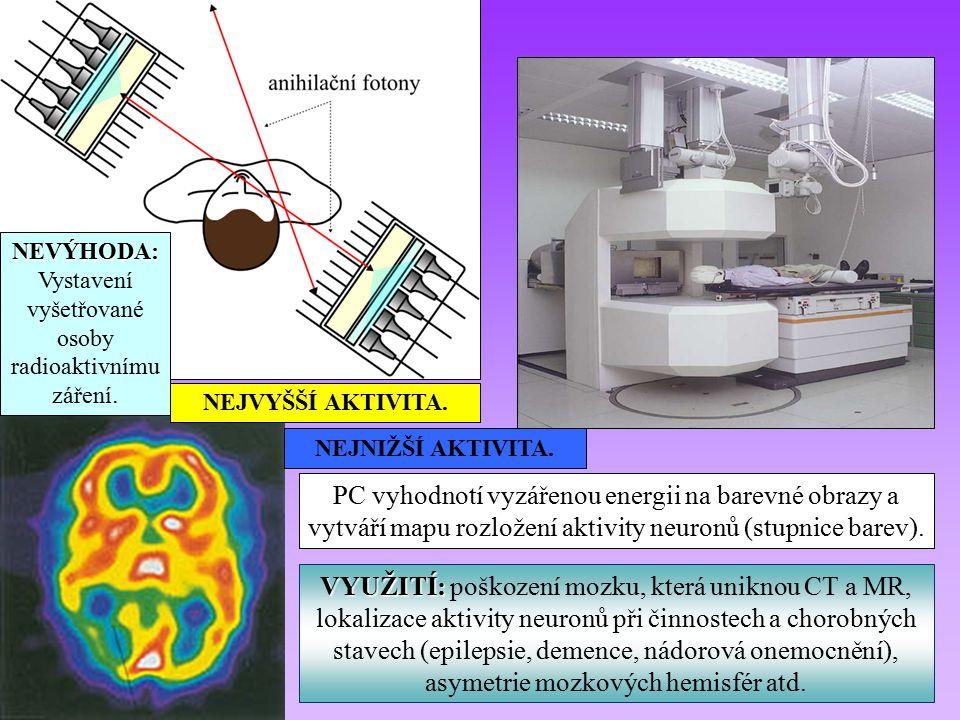 VYUŽITÍ: VYUŽITÍ: poškození mozku, která uniknou CT a MR, lokalizace aktivity neuronů při činnostech a chorobných stavech (epilepsie, demence, nádorová onemocnění), asymetrie mozkových hemisfér atd.