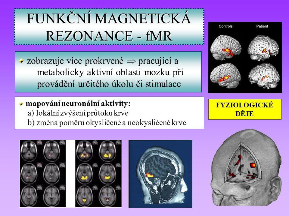 FUNKČNÍ MAGNETICKÁ REZONANCE - fMR zobrazuje více prokrvené  pracující a metabolicky aktivní oblasti mozku při provádění určitého úkolu či stimulace FYZIOLOGICKÉ DĚJE mapování neuronální aktivity: a) lokální zvýšení průtoku krve b) změna poměru okysličené a neokysličené krve