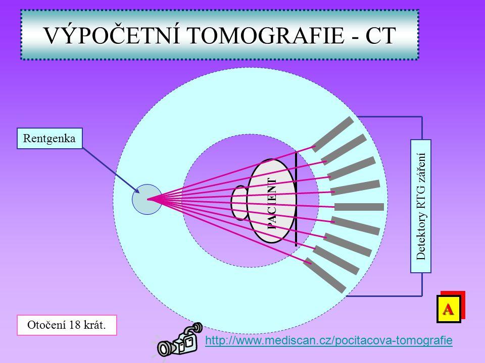 VÝPOČETNÍ TOMOGRAFIE - CT PACIENT Rentgenka Detektory RTG záření Otočení 18 krát.